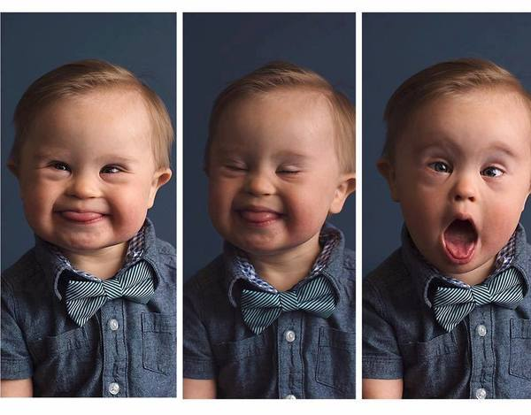 Bilde: Facebook / Kids with Downs Syndrome